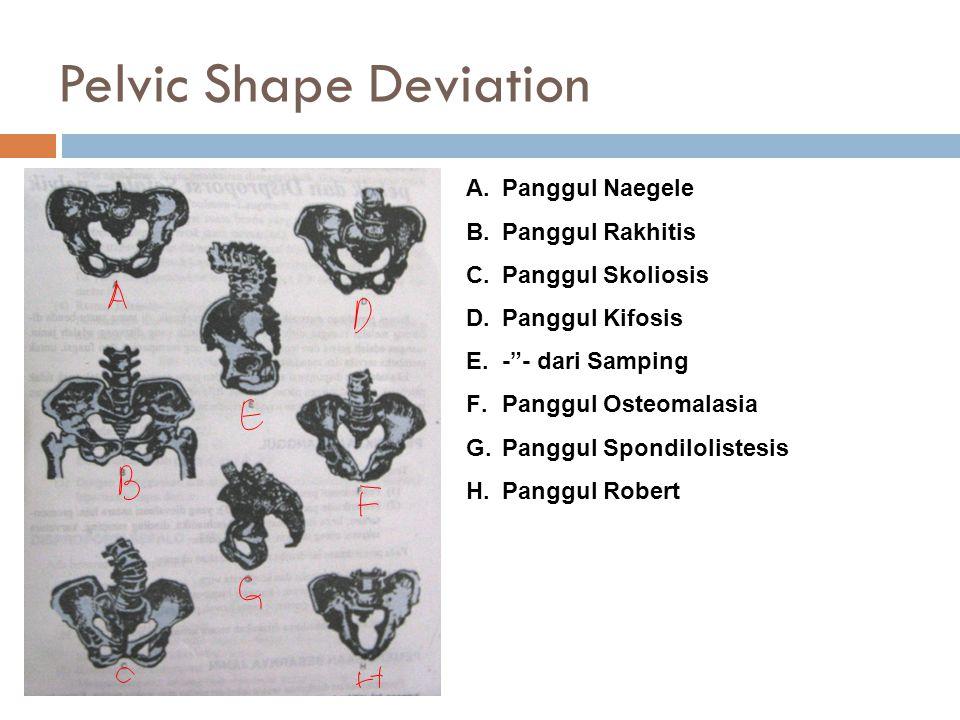 Pelvic Shape Deviation A.Panggul Naegele B.Panggul Rakhitis C.Panggul Skoliosis D.Panggul Kifosis E.- - dari Samping F.Panggul Osteomalasia G.Panggul Spondilolistesis H.Panggul Robert