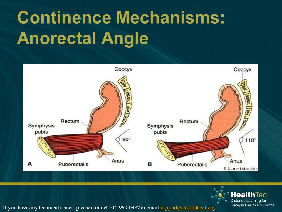 Continence Mechanisms: Anorectal Angle If you have any technical issues, please contact 404-969-0387 or email support@healthtecdl.orgsupport@healthtecdl.org