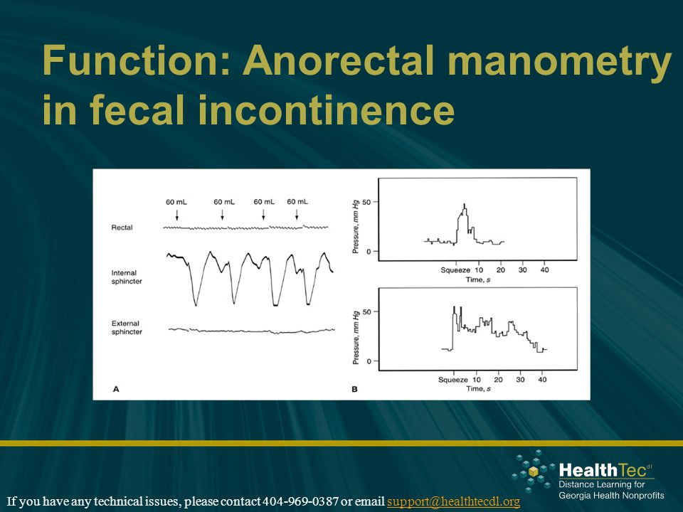 Function: Anorectal manometry in fecal incontinence If you have any technical issues, please contact 404-969-0387 or email support@healthtecdl.orgsupp