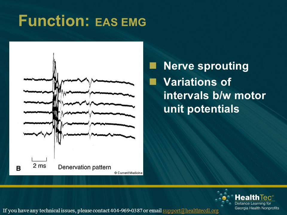 Function: EAS EMG Nerve sprouting Variations of intervals b/w motor unit potentials If you have any technical issues, please contact 404-969-0387 or email support@healthtecdl.orgsupport@healthtecdl.org