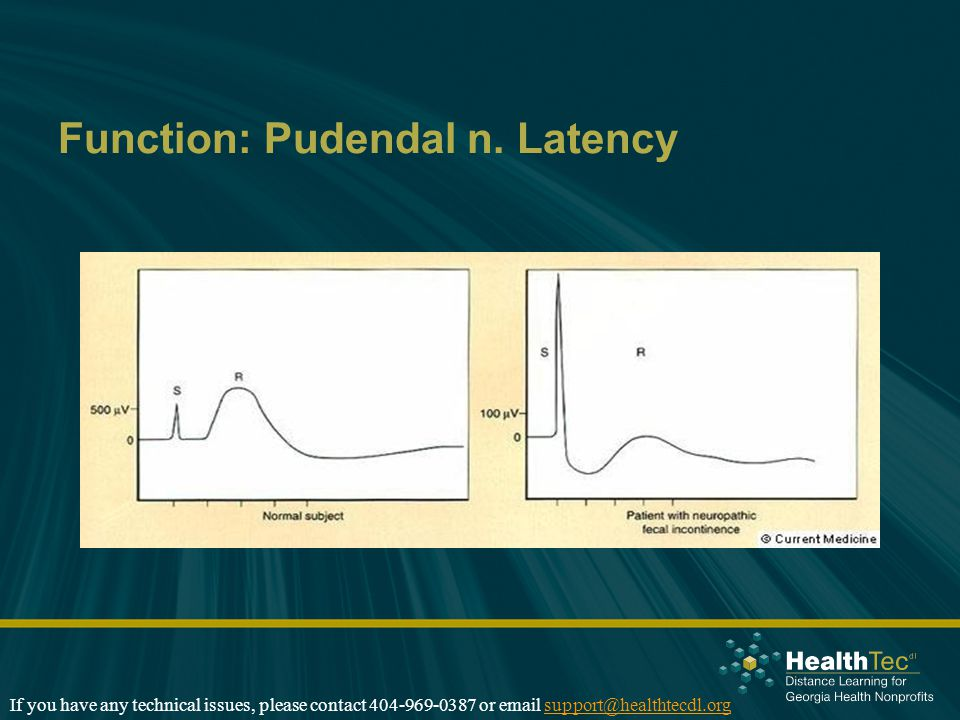 Function: Pudendal n. Latency If you have any technical issues, please contact 404-969-0387 or email support@healthtecdl.orgsupport@healthtecdl.org