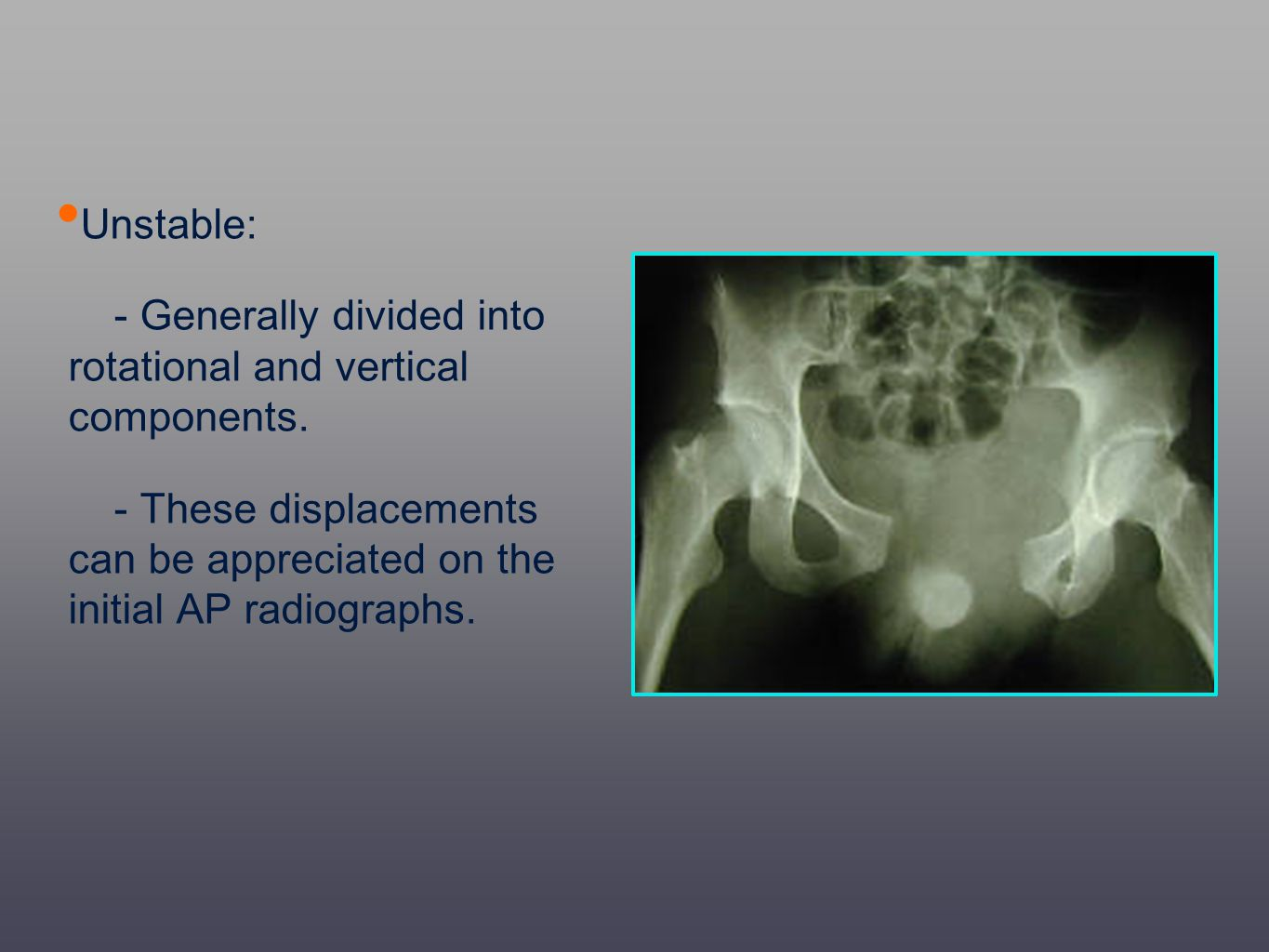 Unstable: - Generally divided into rotational and vertical components. - These displacements can be appreciated on the initial AP radiographs.