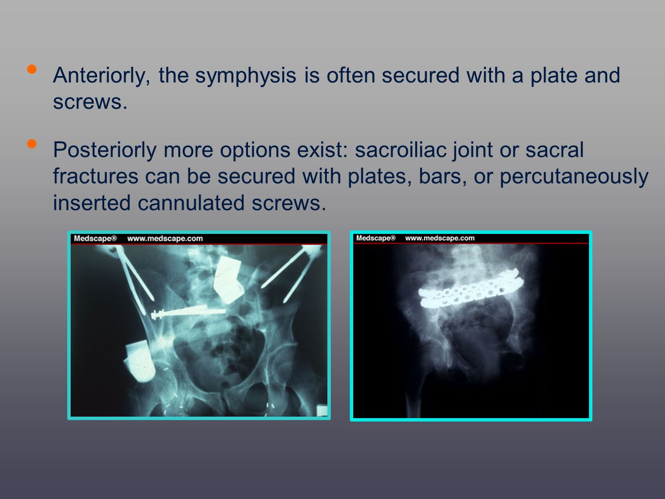 Anteriorly, the symphysis is often secured with a plate and screws. Posteriorly more options exist: sacroiliac joint or sacral fractures can be secure