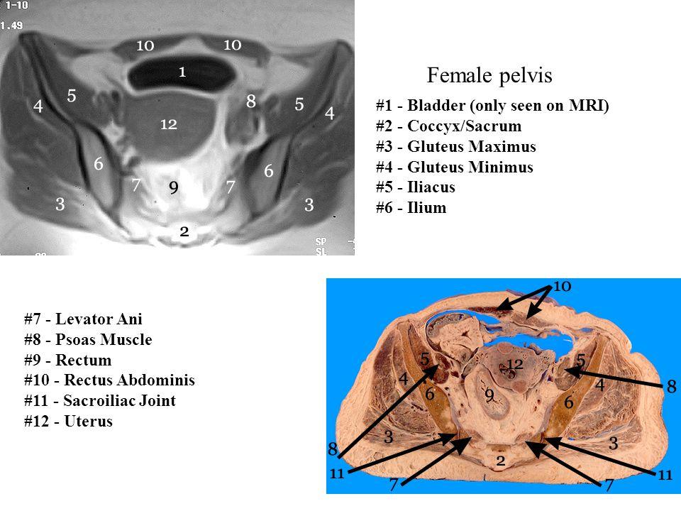 Female pelvis #7 - Levator Ani #8 - Psoas Muscle #9 - Rectum #10 - Rectus Abdominis #11 - Sacroiliac Joint #12 - Uterus #1 - Bladder (only seen on MRI
