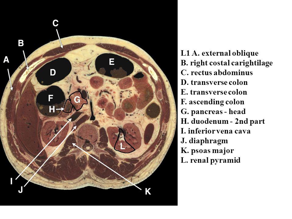 L1 A. external oblique B. right costal carightilage C. rectus abdominus D. transverse colon E. transverse colon F. ascending colon G. pancreas - head
