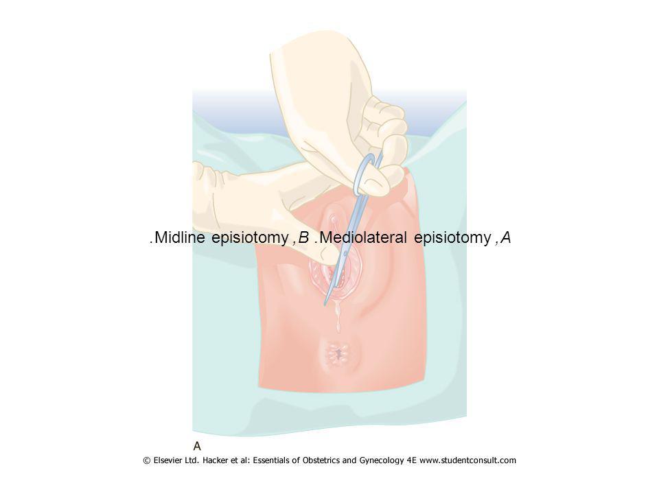 A, Mediolateral episiotomy. B, Midline episiotomy.