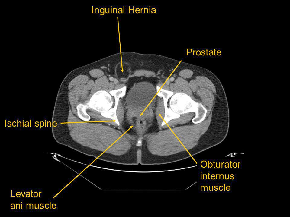 Ischial spine Levator ani muscle Obturator internus muscle Inguinal Hernia Prostate