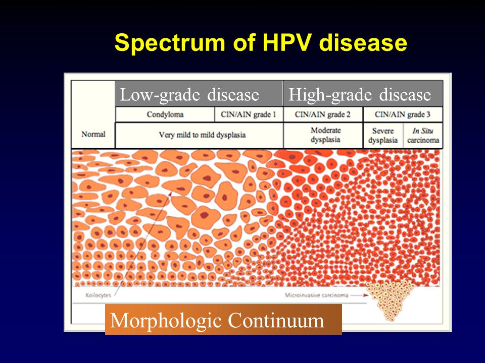 Spectrum of HPV disease Morphologic Continuum Low-grade diseaseHigh-grade disease