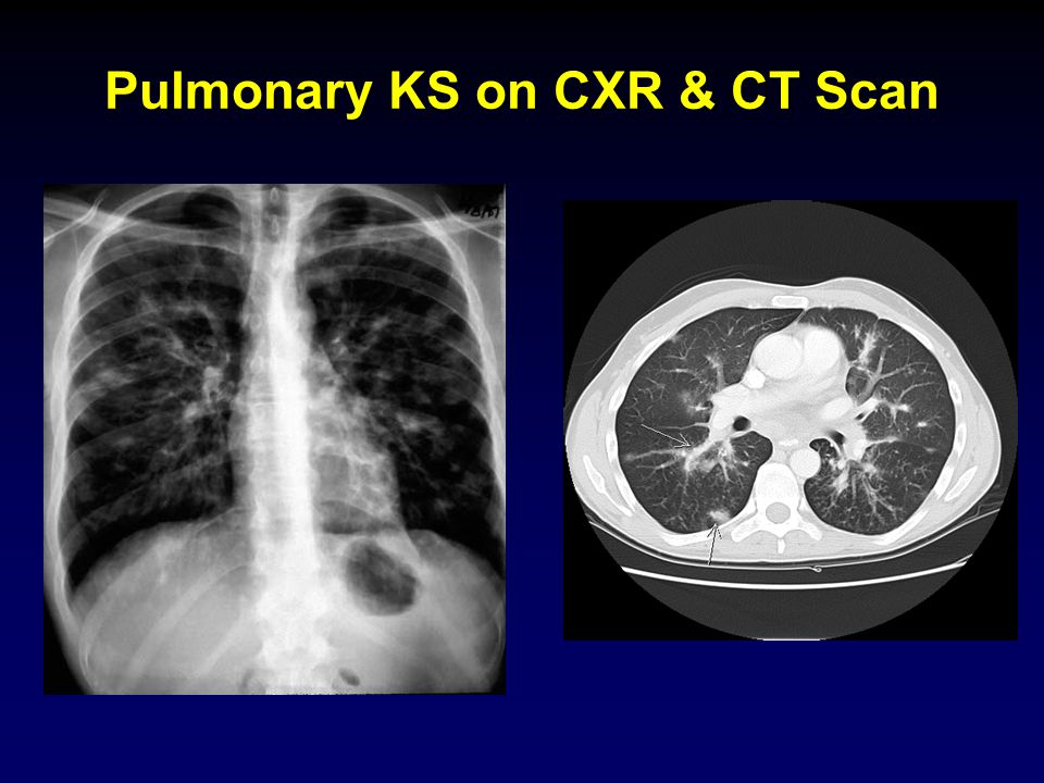 Pulmonary KS on CXR & CT Scan