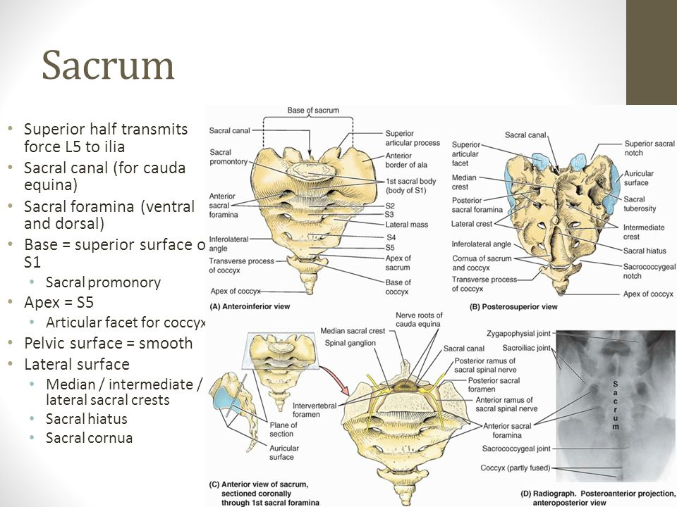 Sacrum Superior half transmits force L5 to ilia Sacral canal (for cauda equina) Sacral foramina (ventral and dorsal) Base = superior surface of S1 Sacral promonory Apex = S5 Articular facet for coccyx) Pelvic surface = smooth Lateral surface Median / intermediate / lateral sacral crests Sacral hiatus Sacral cornua