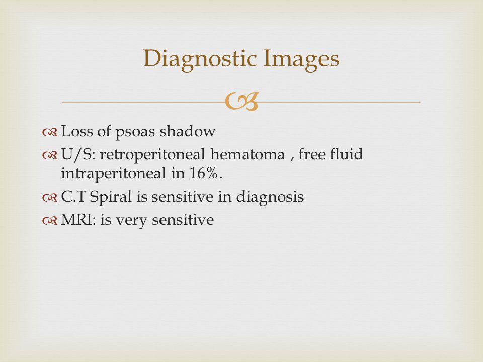   Loss of psoas shadow  U/S: retroperitoneal hematoma, free fluid intraperitoneal in 16%.  C.T Spiral is sensitive in diagnosis  MRI: is very sen