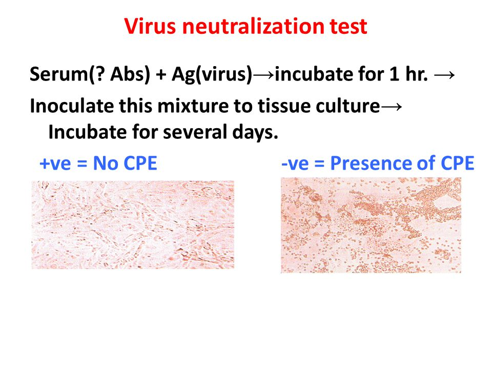 Virus neutralization test Serum(? Abs) + Ag(virus) → incubate for 1 hr. → Inoculate this mixture to tissue culture → Incubate for several days. +ve =
