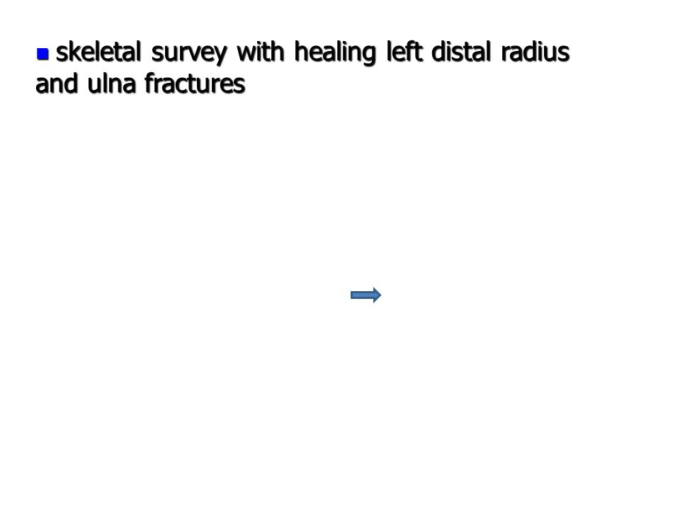 skeletal survey with healing left distal radius and ulna fractures skeletal survey with healing left distal radius and ulna fractures
