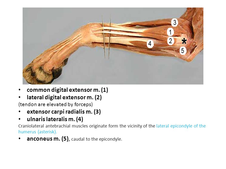 common digital extensor m. (1) lateral digital extensor m. (2) (tendon are elevated by forceps) extensor carpi radialis m. (3) ulnaris lateralis m. (4