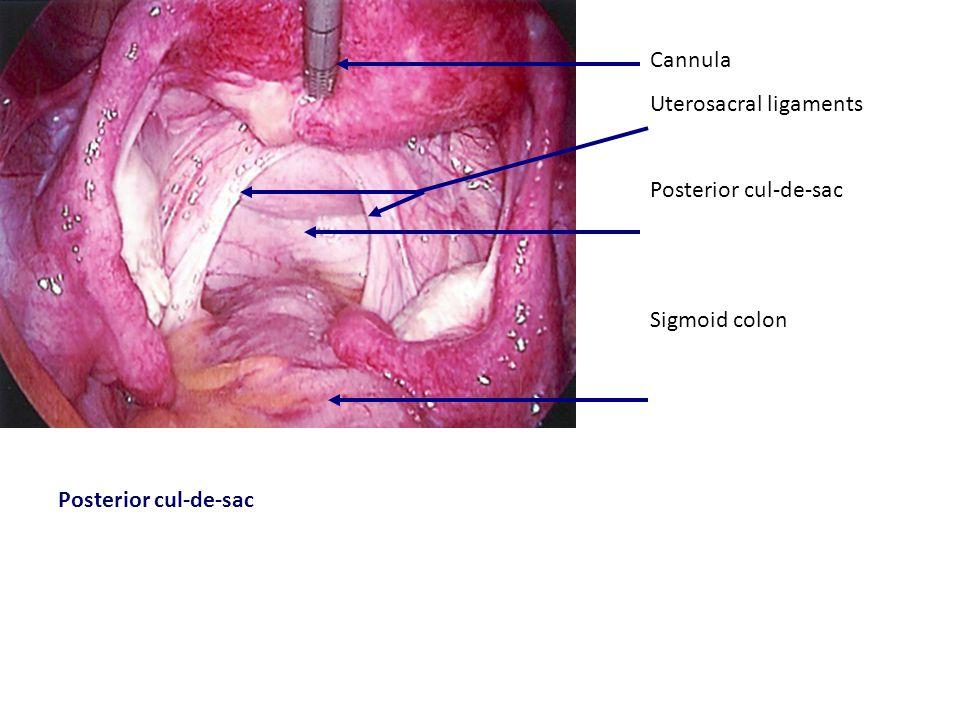Right Pelvic Sidewall Uterus Fallopian tube I-P ligament Uterosacral ligament Ureter Hypogastric artery Sigmoid colon