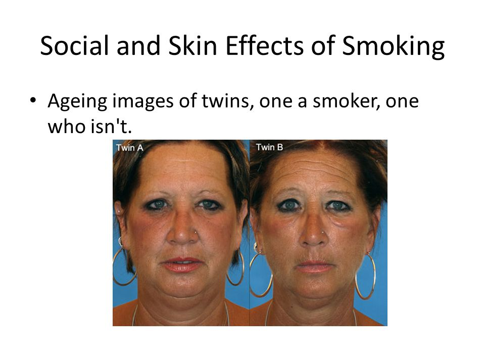 Social and Skin Effects of Smoking Ageing images of twins, one a smoker, one who isn t.