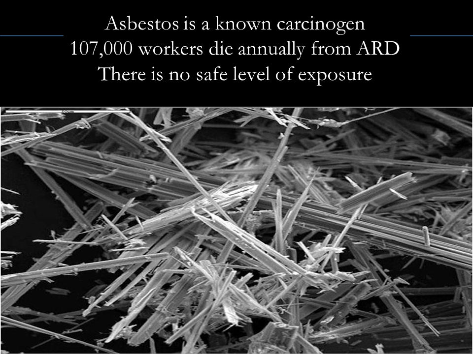 Asbestos is a known carcinogen 107,000 workers die annually from ARD There is no safe level of exposure