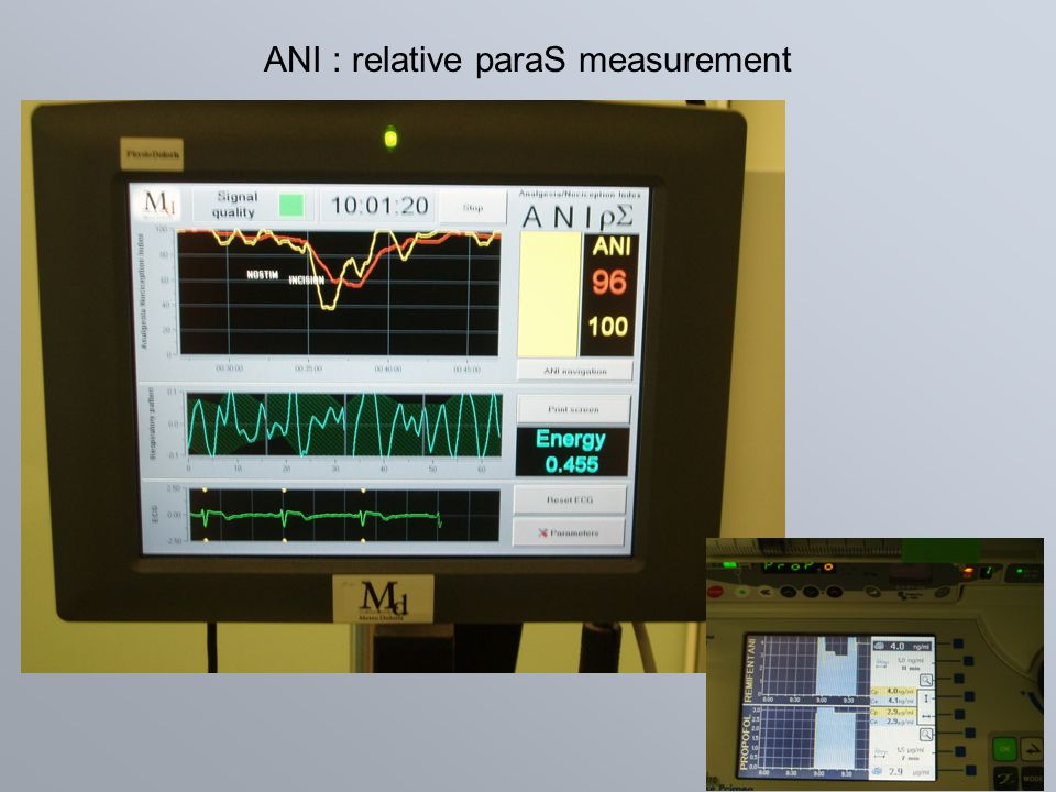 ANI : relative paraS measurement