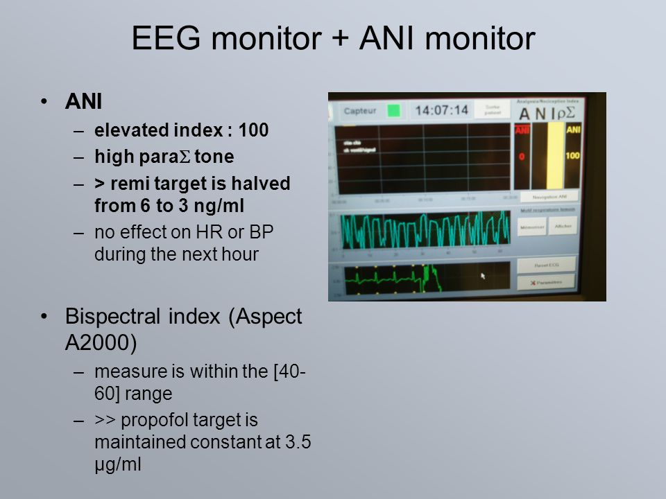 EEG monitor + ANI monitor ANI –elevated index : 100 –high para  tone –> remi target is halved from 6 to 3 ng/ml –no effect on HR or BP during the nex