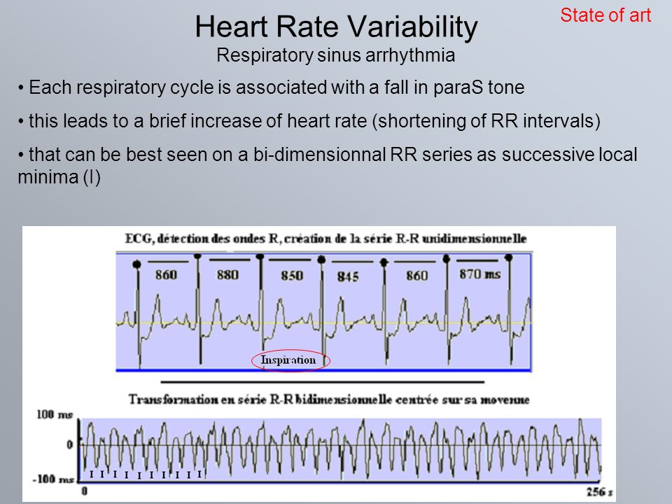 Heart Rate Variability Respiratory sinus arrhythmia Each respiratory cycle is associated with a fall in paraS tone this leads to a brief increase of h