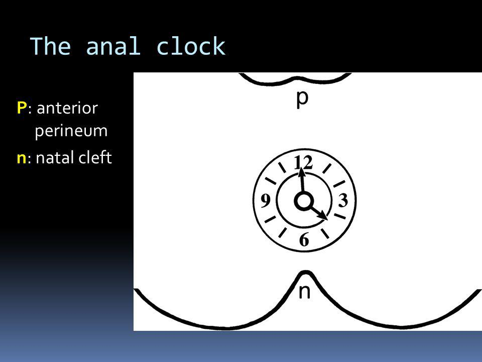 The anal clock  The surgeon's view of the perianal region when the patient is in the supine lithotomy position, corresponds to the orientation of axial MRI of the perianal region