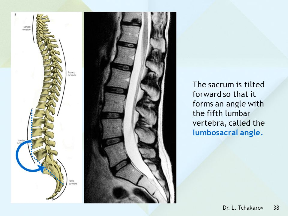 Dr. L. Tchakarov38 The sacrum is tilted forward so that it forms an angle with the fifth lumbar vertebra, called the lumbosacral angle.