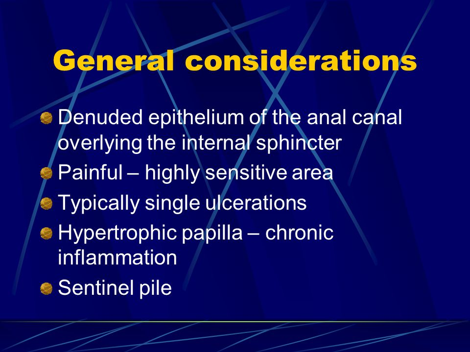 General considerations Denuded epithelium of the anal canal overlying the internal sphincter Painful – highly sensitive area Typically single ulcerations Hypertrophic papilla – chronic inflammation Sentinel pile