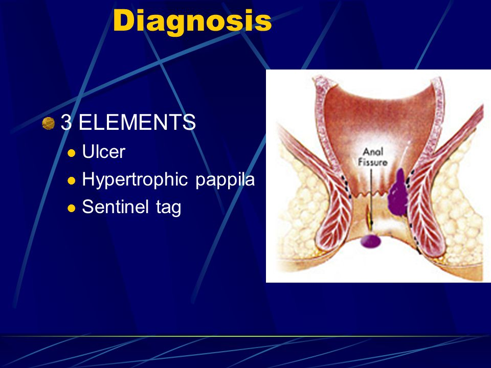 Diagnosis 3 ELEMENTS Ulcer Hypertrophic pappila Sentinel tag