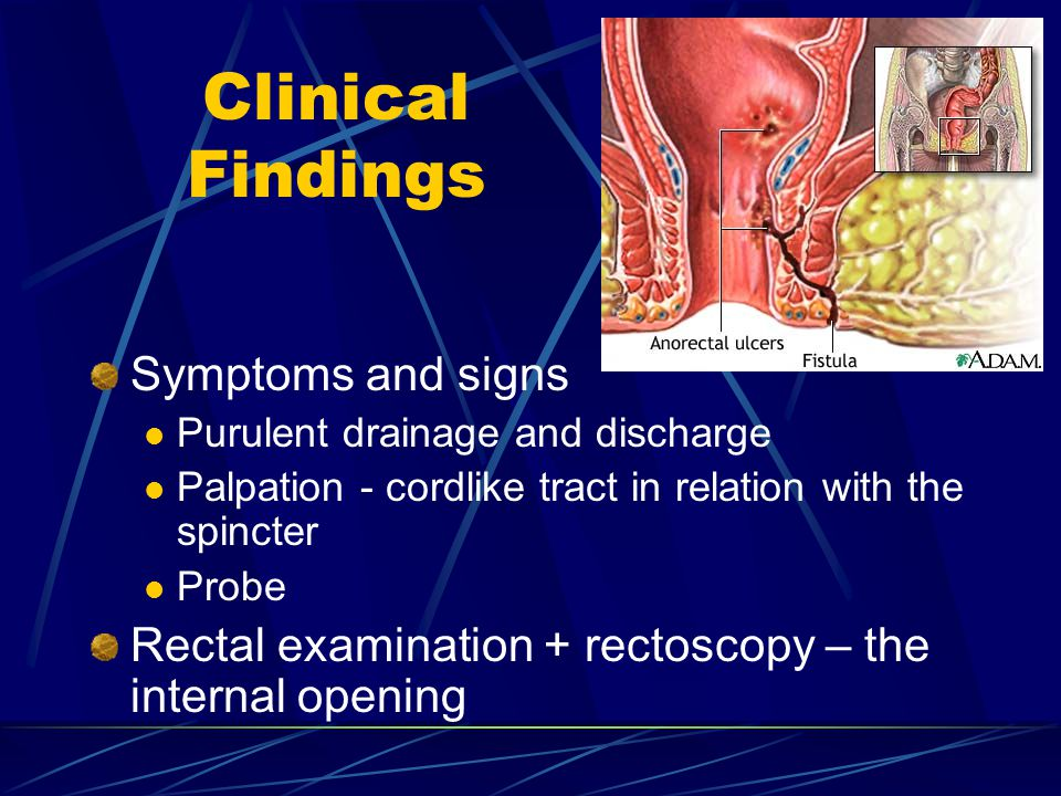 Clinical Findings Symptoms and signs Purulent drainage and discharge Palpation - cordlike tract in relation with the spincter Probe Rectal examination