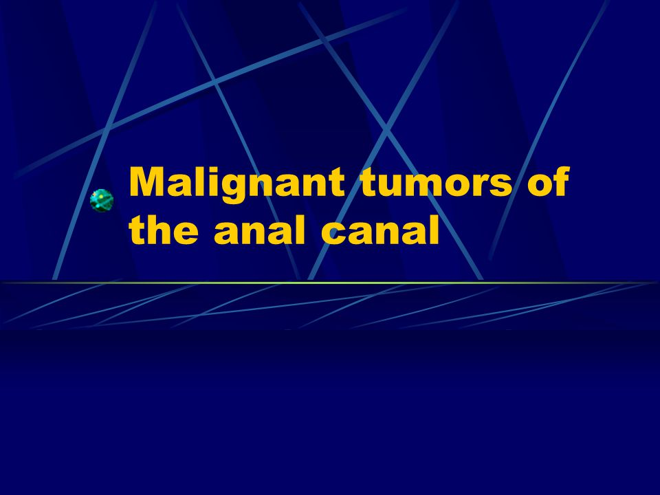 Malignant tumors of the anal canal