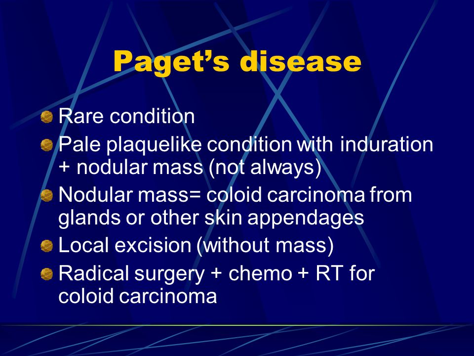 Paget's disease Rare condition Pale plaquelike condition with induration + nodular mass (not always) Nodular mass= coloid carcinoma from glands or oth