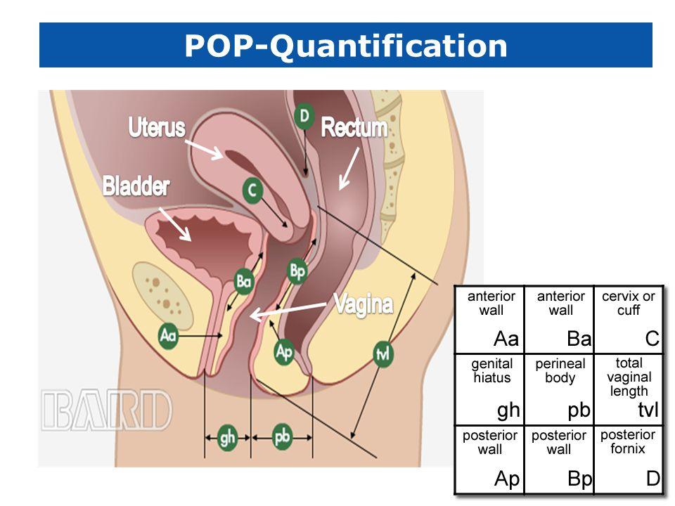 POP-Quantification