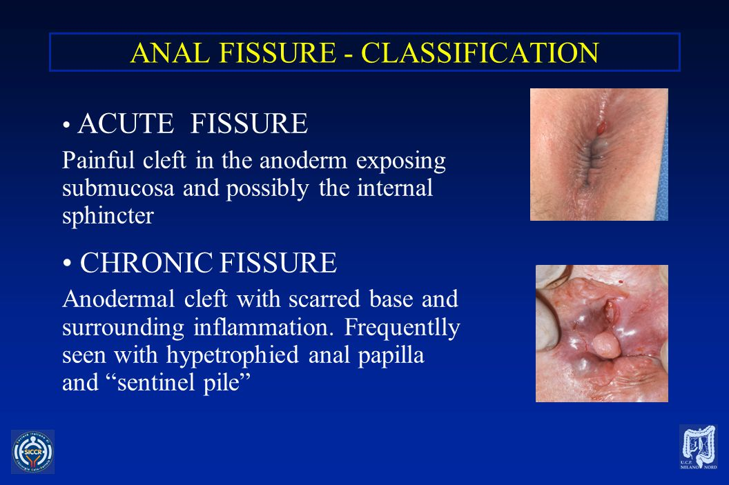 ANAL FISSURE - PRESENTATION CHRONIC FISSURE Deep indurated anal ulcer Elevated, overhanging edges Associated scarring Sentinel pile +hypertrophied papilla Visibile sphincter fibers Rarely lateral Less pain at defecation with gradually decreasing intensity (lasts from minutes to several hours).