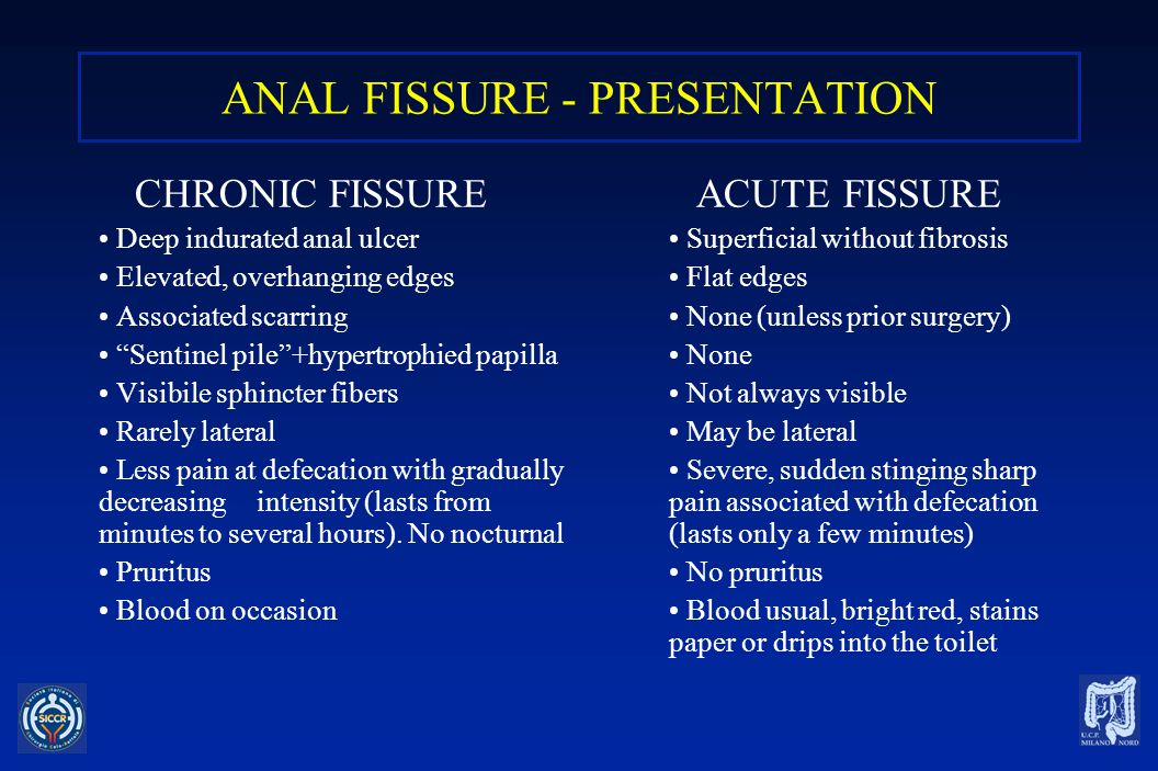 ANAL FISSURE - ETIOLOGY Associated with passage of hard stool Associated with sphincteric hypertone .