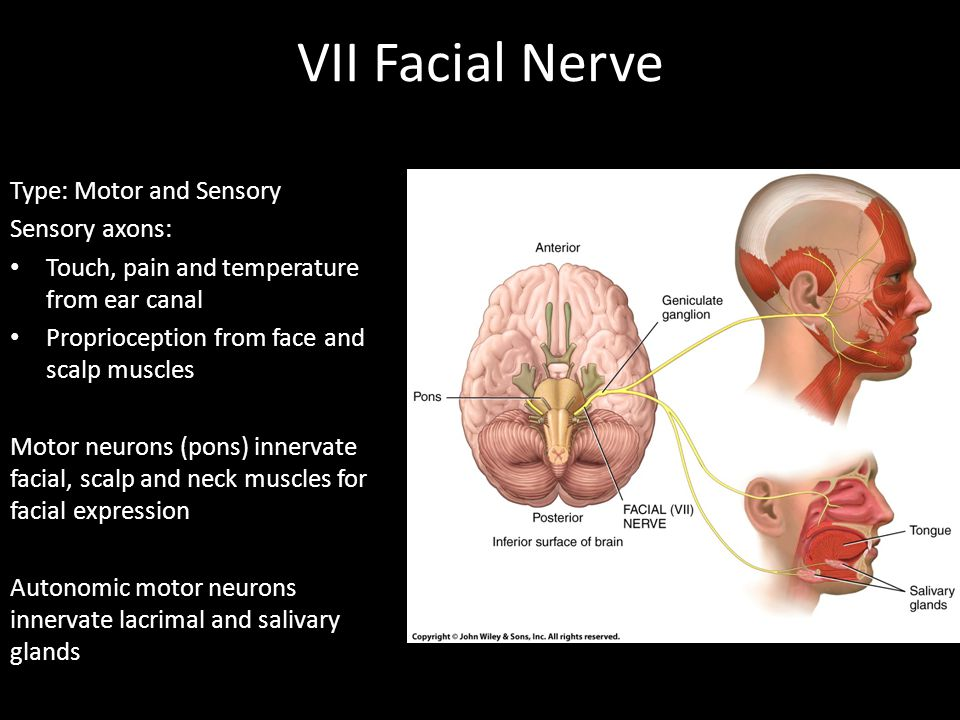 VII Facial Nerve Type: Motor and Sensory Sensory axons: Touch, pain and temperature from ear canal Proprioception from face and scalp muscles Motor ne
