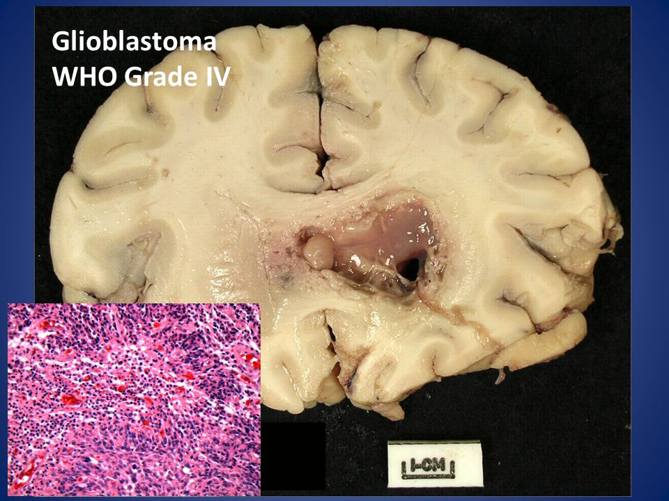 Glioblastoma WHO Grade IV