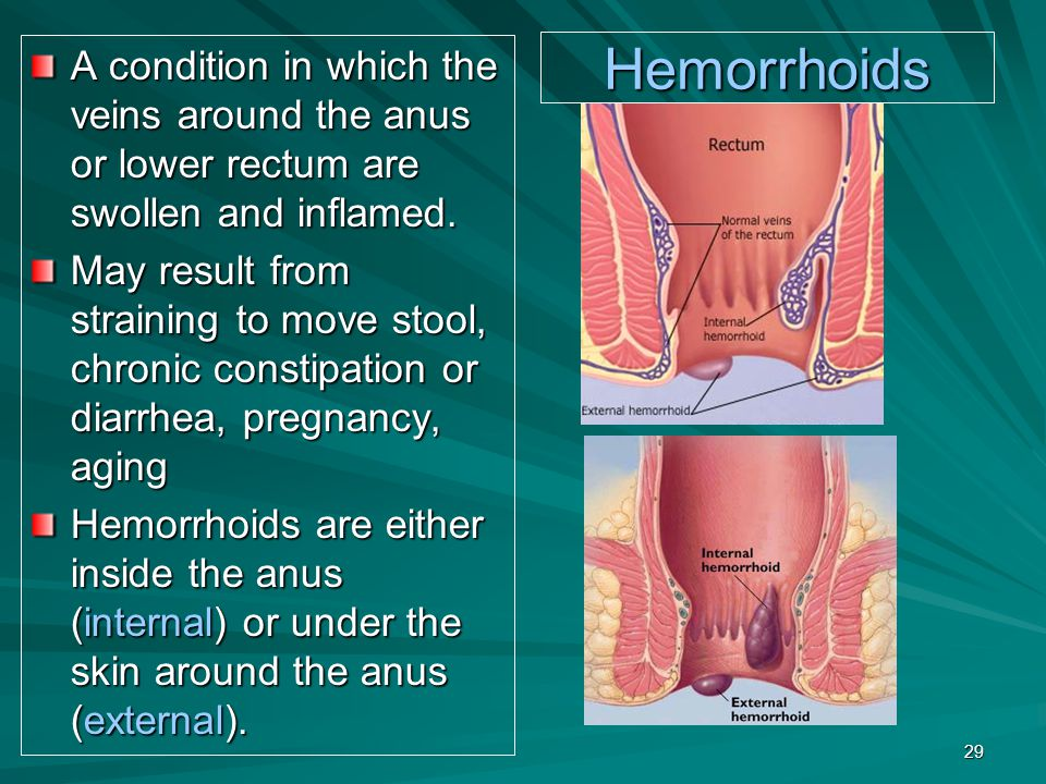 Hemorrhoids A condition in which the veins around the anus or lower rectum are swollen and inflamed. May result from straining to move stool, chronic