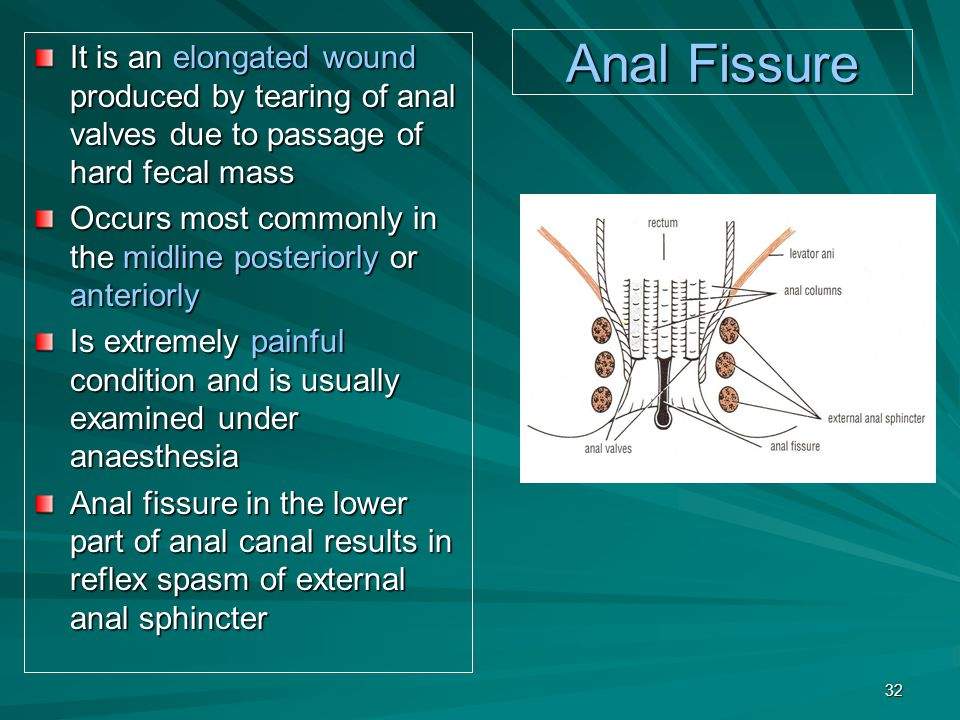 Anal Fissure It is an elongated wound produced by tearing of anal valves due to passage of hard fecal mass Occurs most commonly in the midline posteriorly or anteriorly Is extremely painful condition and is usually examined under anaesthesia Anal fissure in the lower part of anal canal results in reflex spasm of external anal sphincter 32