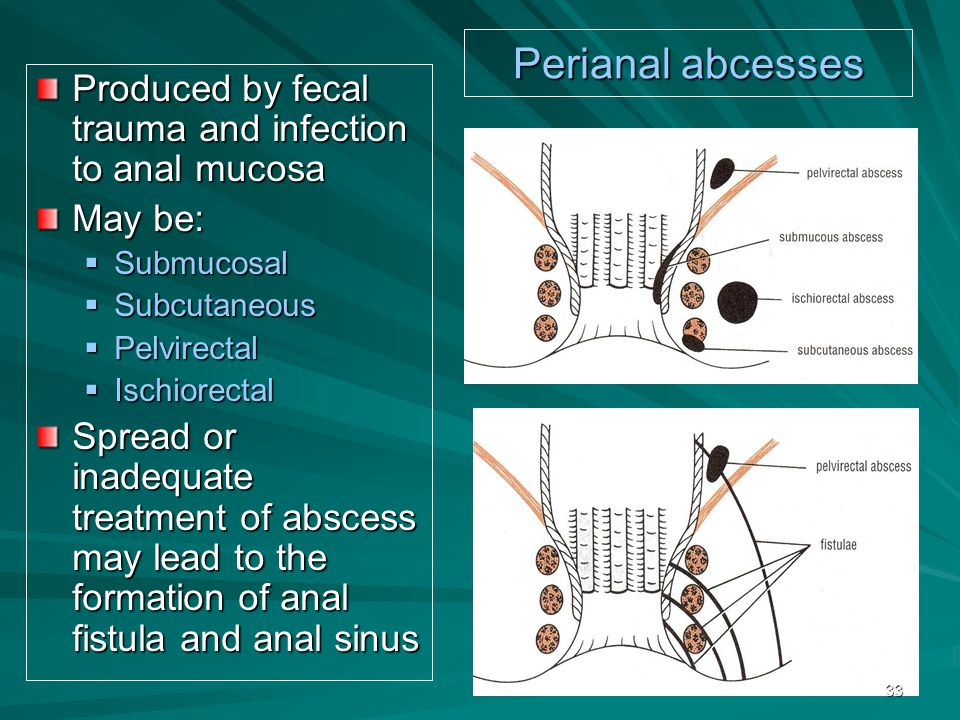 Perianal abcesses Produced by fecal trauma and infection to anal mucosa May be:  Submucosal  Subcutaneous  Pelvirectal  Ischiorectal Spread or inadequate treatment of abscess may lead to the formation of anal fistula and anal sinus 33