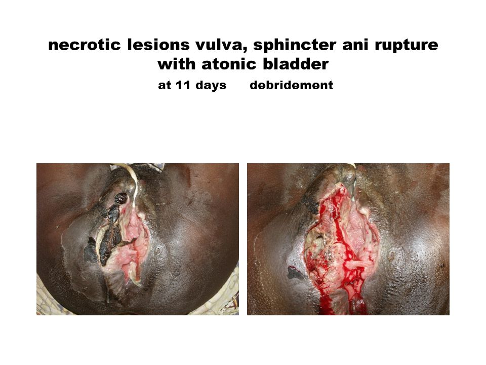 necrotic lesions vulva, sphincter ani rupture with atonic bladder at 11 daysdebridement
