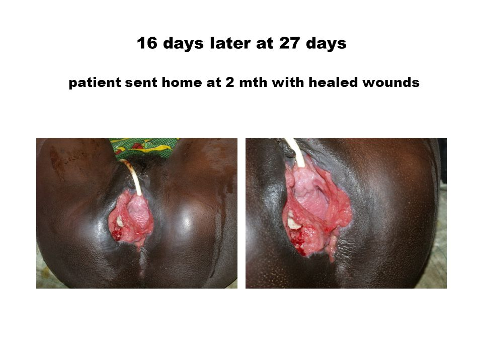 16 days later at 27 days patient sent home at 2 mth with healed wounds