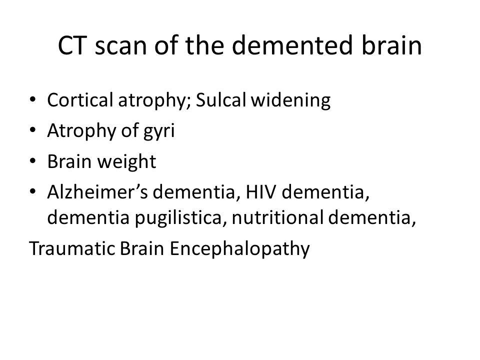 CT scan of the demented brain Cortical atrophy; Sulcal widening Atrophy of gyri Brain weight Alzheimer's dementia, HIV dementia, dementia pugilistica,