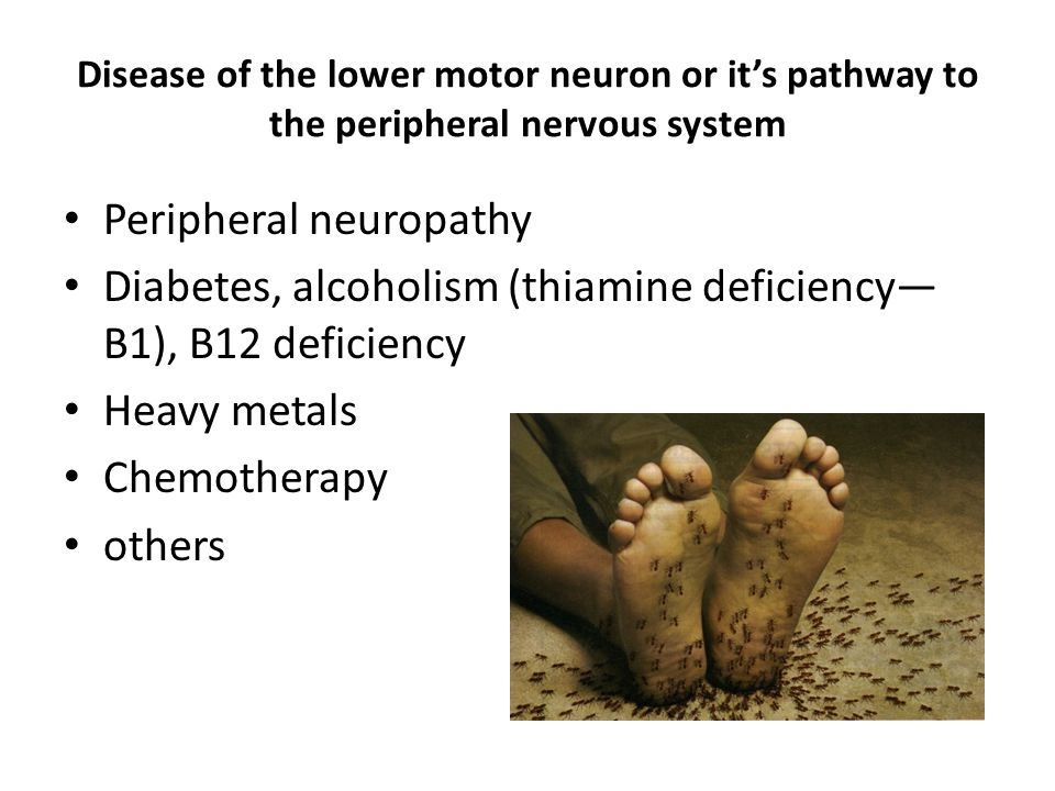 Disease of the lower motor neuron or it's pathway to the peripheral nervous system Peripheral neuropathy Diabetes, alcoholism (thiamine deficiency— B1