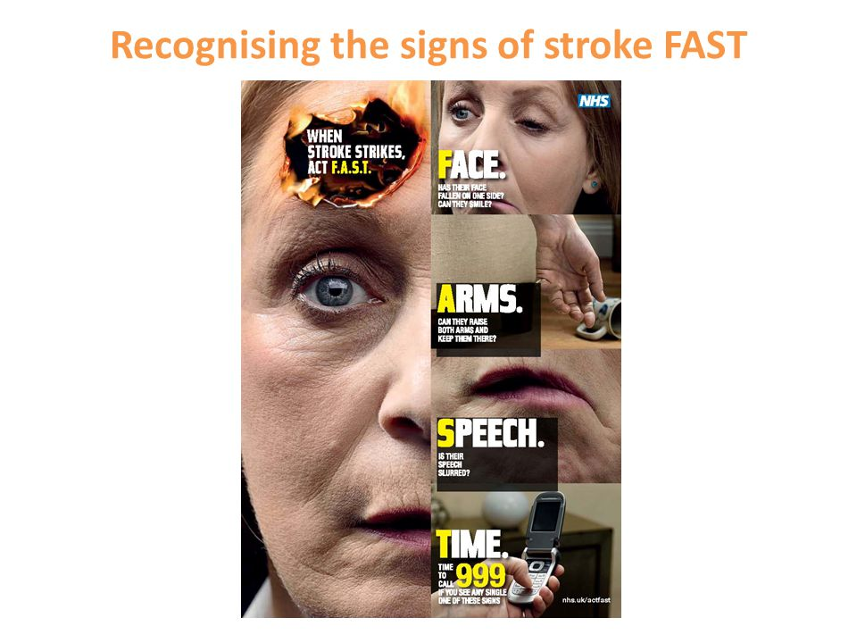 Recognising the signs of stroke FAST