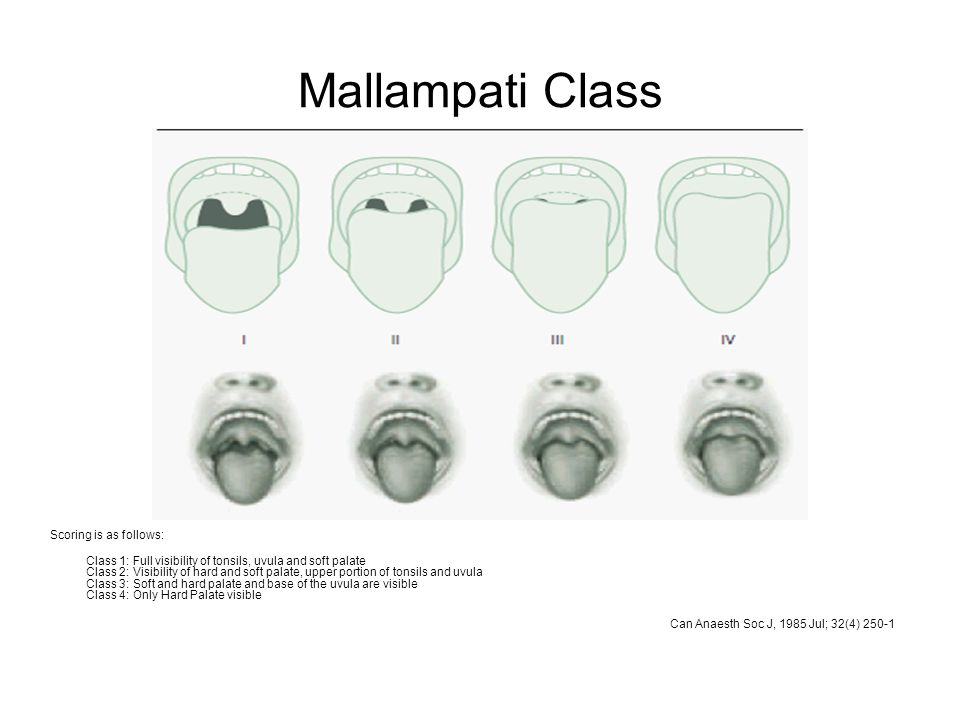 Mallampati Class Scoring is as follows: Class 1: Full visibility of tonsils, uvula and soft palate Class 2: Visibility of hard and soft palate, upper portion of tonsils and uvula Class 3: Soft and hard palate and base of the uvula are visible Class 4: Only Hard Palate visible Can Anaesth Soc J, 1985 Jul; 32(4) 250-1
