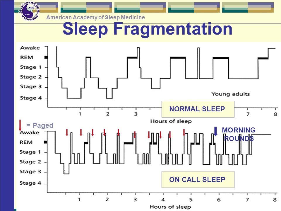 © American Academy of Sleep Medicine American Academy of Sleep Medicine Sleep Fragmentation = Paged NORMAL SLEEP ON CALL SLEEP MORNING ROUNDS
