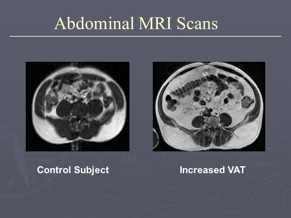 Abdominal MRI Scans Control SubjectIncreased VAT SAT