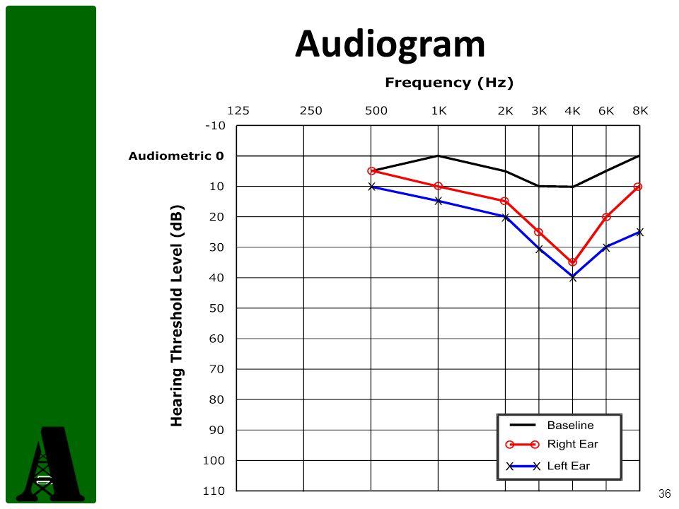 36 Audiogram