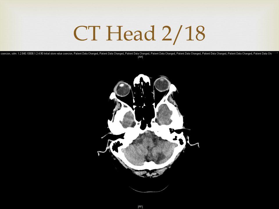  CT Head 2/18