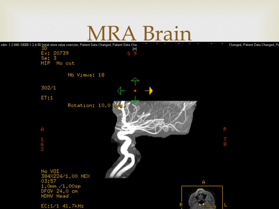  MRA Brain